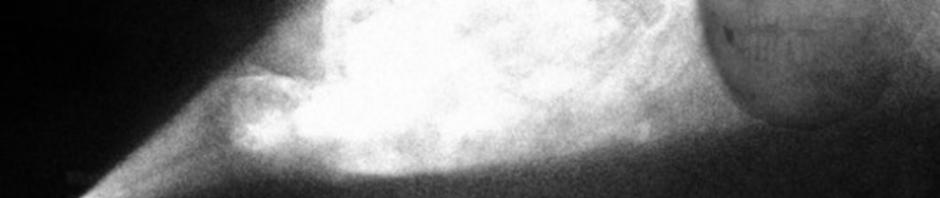 itrwtd banner 940